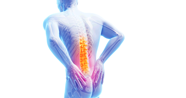 허리디스크증상, 허리가 아프고 쑤신다. 엉치 또는 허벅지, 종아리, 발끝이 저리거나 아프거나 당긴다. 아침에 머리를 감기 위해 머리를 숙일 때 허리가 뻣뻣하거나 통증이 있다. 묵직한 느낌의 요통이 있다.