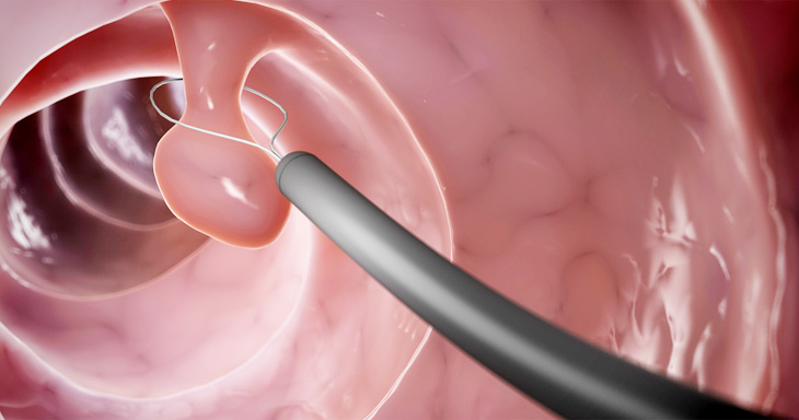 용종절제술, 용종절제술은 내시경 검사를 통해 대장 상태를 확인한 뒤 파악된 용종이 만약 종용성용종이라면 올가미를 체내로 삽입하여 제거대상인 용종을 묶어 전기를 통해 제거하게 됩니다. 통증은 거의 없으며 간혹 발생하는 증상으로는 통증 또는 발열 등이 있습니다.<br /> 시술 후에는 안정을 취하는 것이 좋으며 일정기간 동안은 몸상태를 확인해야합니다. 용종 절제 이후에는 조직검사를 통해 정밀하게 파악을 해야하며, 이후 내시경검사를 주기적으로 진행하며 경과에 따라 추적 관찰을 하는 것이 좋습니다.