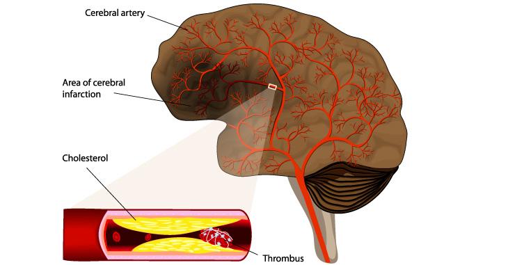 뇌졸중, 중풍이라고도 부르는 뇌졸중은 뇌혈관에 생기는 구조적인 변화에 기인하여 뇌혈관이 막히는 현상의 허혈성 뇌졸중(뇌경색)과 혈압을 견디지 못하고 터지는 출혈성 뇌졸중(뇌출혈)으로 크게 구분됩니다.