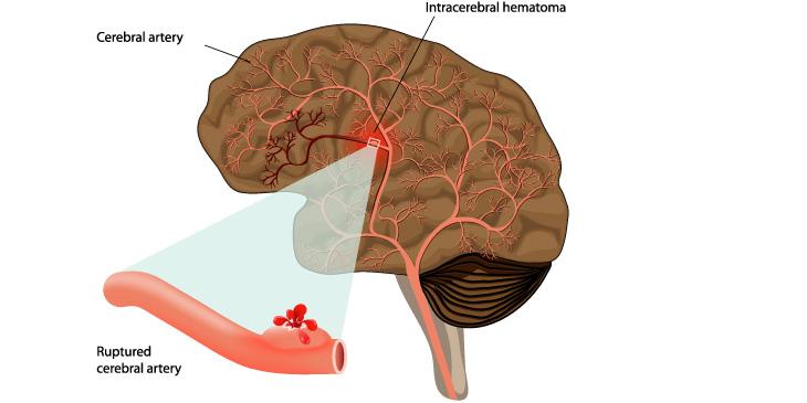 뇌출혈(출혈성뇌졸중) 뇌 속 작은 동맥이 터져 뇌실 또는 뇌실질 안에 출혈이 플러들어가 뇌세포가 기능을 잃으면서 발생하는 것으로 한번 발생하면 심한 후유증을 남겨 예방이 중요한 병입니다.