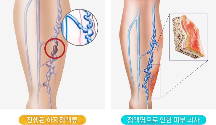 진행된 하지정맥류, 정맥염으로 인한 피부 괴사