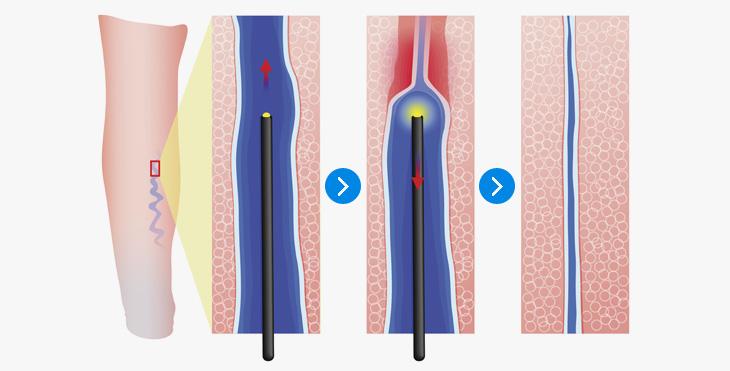 레이저치료: 정맥 내에 머리카락 굵기(0.2-0.6㎜)의 광섬유를 넣어서 혈관 내막에 레이저를 직접 조사하는 방법입니다. 레이저가 조사된 혈관 내막은 손상을 입어 정맥 굵기가 줄어들게 되고 정맥혈의 역류가 차단됩니다.