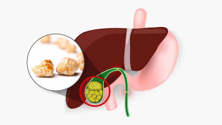 담석증: 담석이란 담즙 내 구성 성분이 담낭이나 담관 내에서 응결 및 침착되어 형성된 결정성 구조물을 말합니다. 담낭에서 생긴 담석이 담낭 경부, 담낭관 혹은 총담관으로 이동하여 염증이나 폐쇄를 일으켜 증상을 일으키는 것을 담석증이라고 합니다.