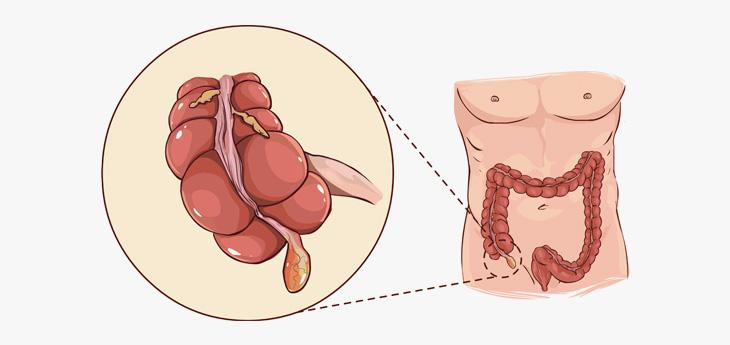 급성충수염: 흔히들 맹장염이라고 알고 있는 질환의 정확한 병명은 급성 충수염 입니다. 충수염이란 대장이 시작되는 부위인 맹장의 끝에 충수돌기가 붙어있는데 여기에 생긴 급성 염증입니다.